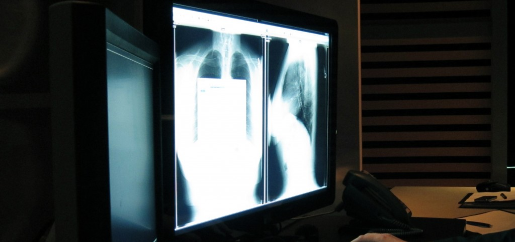 GE Healthcare RIS Software in Use